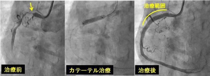 手術 心筋 梗塞 カテーテル